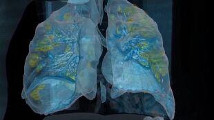 Wideo 3D pokazuje, jak wyglądają płuca zakażonego koronawirusem